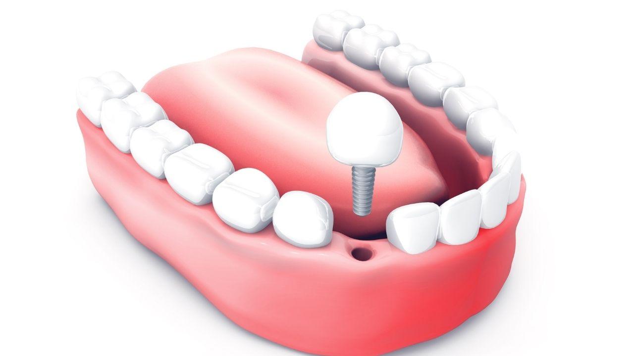 What are Dental Bone Grafts?