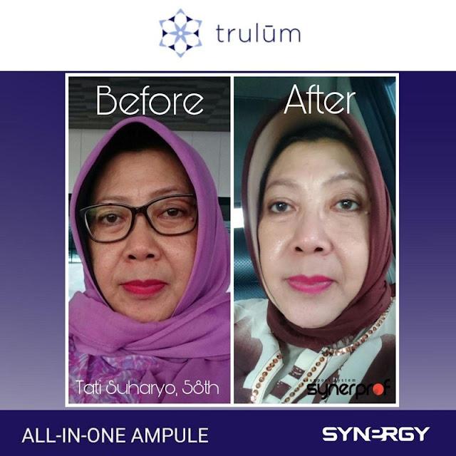 Jual Serum Penghilang Keriput Trulum Skincare Tombariri Timur Minahasa