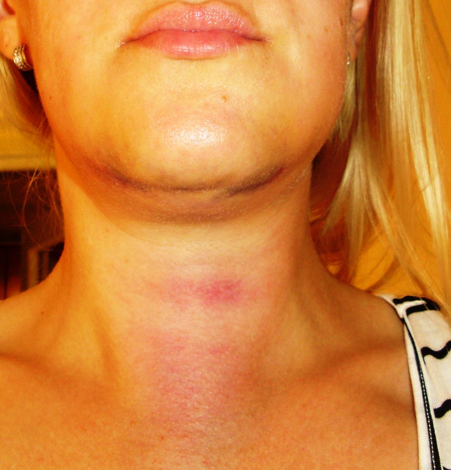 My dental Travel Experience in Romania: Dual Bone Grafting ...