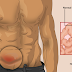 10 Best Exercises for Hernia Patient