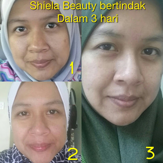 TESTIMONI SHIELA BEAUTY