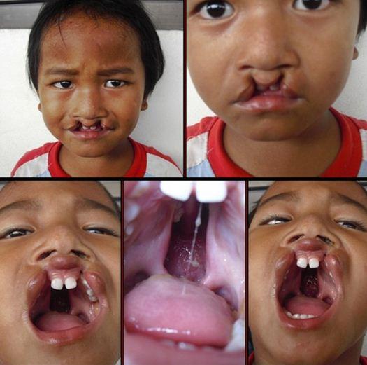 mencegah Bibir Sumbing