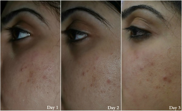 Proactiv® Solution's 3-step system Before and After