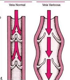 As veias varicosas apresentam refluxo de sangue por conta do mau funcionamento de suas válvulas