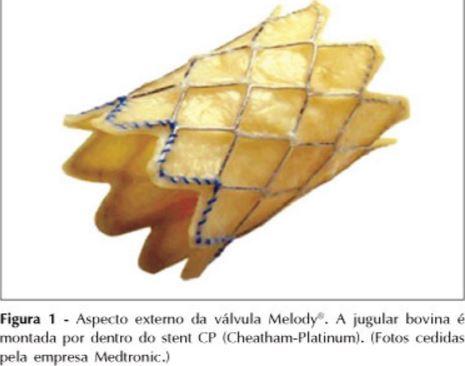 Válvula Melody: HCor é pioneiro no implante de válvula pulmonar por cateterismo