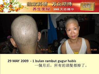 Testimoni keguguran rambut  sembuh dengan Sne kapsul, Beutskin essense