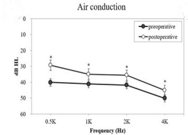Костная проводимость в пред- и послеоперационном периодах