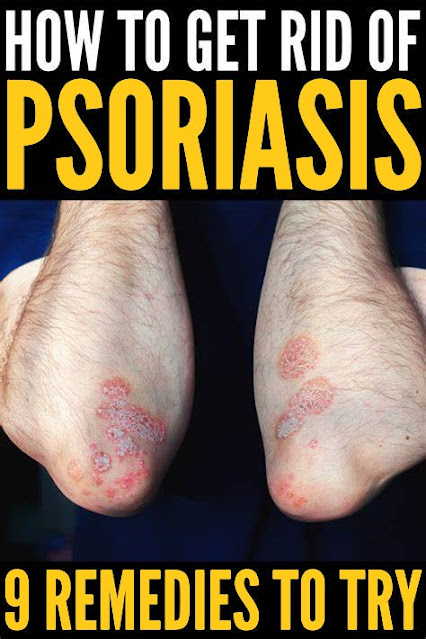 How to Get Rid of Psoriasis: 9 Tips and Remedies to Try