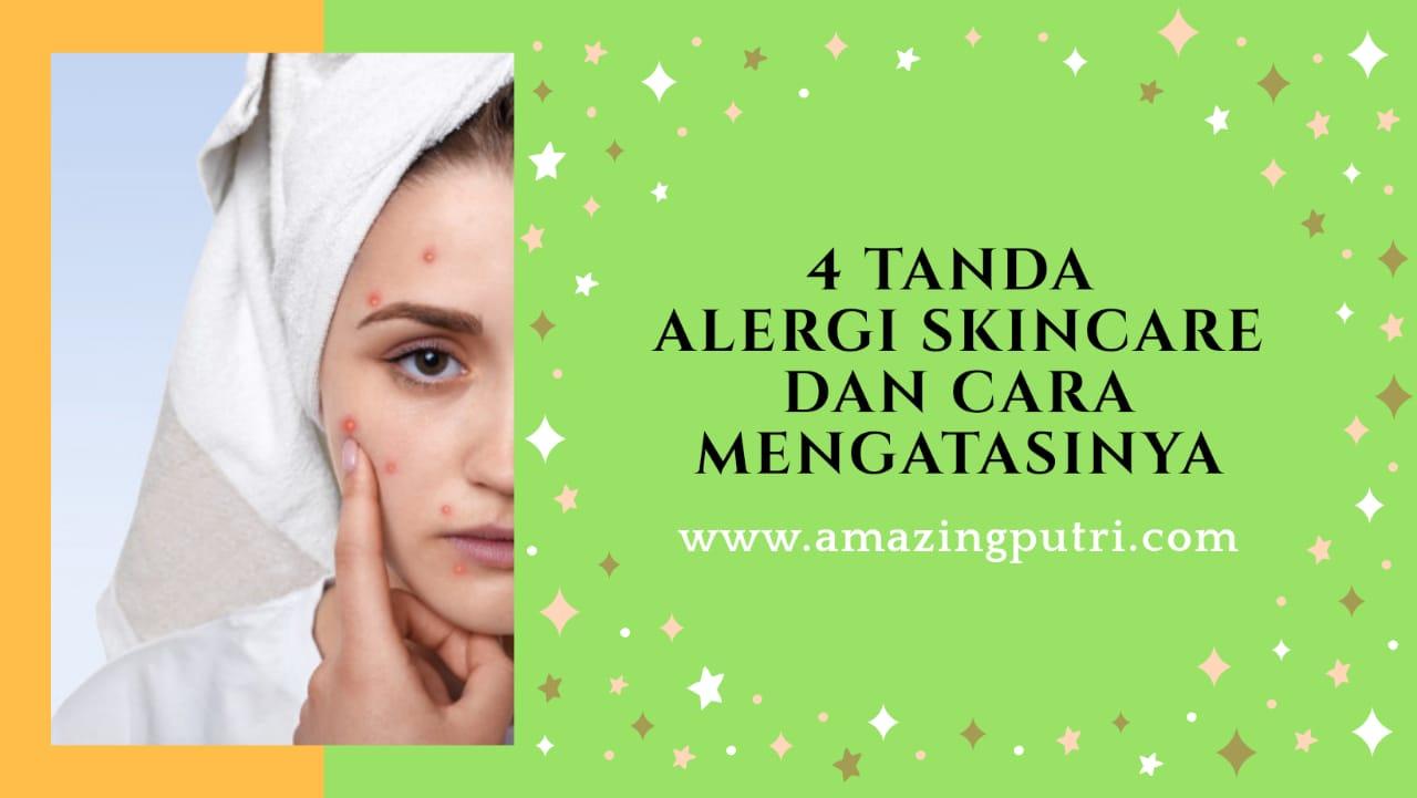 4 Tanda Alergi Skincare dan Cara Mengatasinya