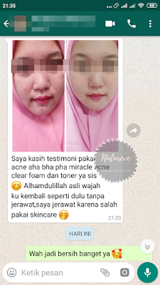 Testimoni Miracle Acne Clear Foam