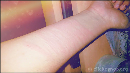 Those Scars, Is not it Beautiful?