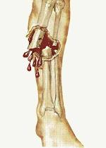 الاسعافات الاولية لكسور العظام