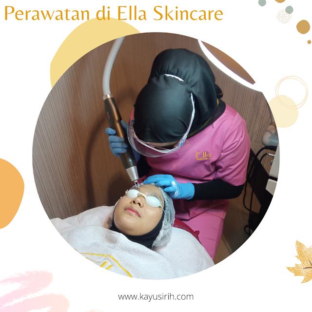 Laser Optima di Ella Skincare