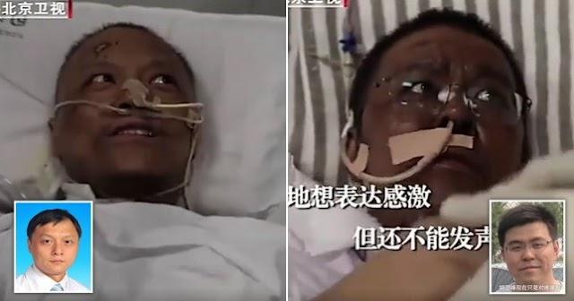 أطباء اوهان يستيقظون الغيبوبة بسبب كورونا  ليجدوا أن الجلد تغير لونه
