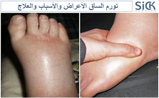 تورم الساق الأعراض والأسباب والعلاج