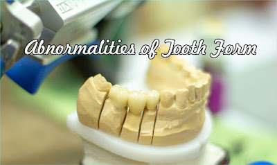 Abnormalities of Tooth Form