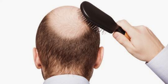 Ini Nih Tips Mudah Mengatasi Rambut Rontok Secara Alami Tanpa Efek Samping
