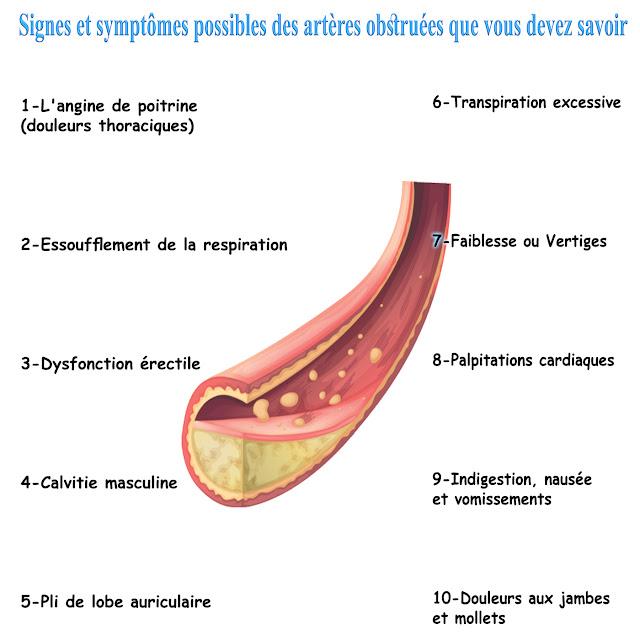 10 Signes et symptômes possibles des artères obstruées que vous devez savoir