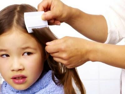 5 Petua Atasi Masalah Kutu Di Rambut Anak Tanpa Guna Syampu Kutu