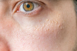 There are small spots that are the same color as this skin color, not acne or blackheads, but a sign of aging
