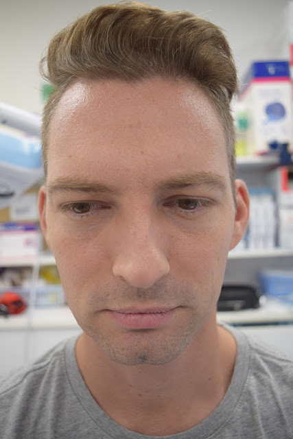 Frown lines after botox injections