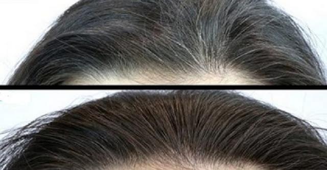 Incrível remédio caseiro que elimina cabelos brancos – faça e comprove!