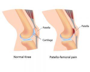 patellofemoral pain