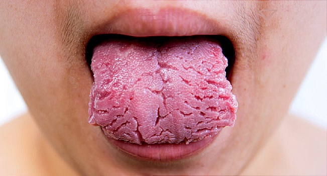 Tongue Disease Treatment