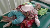 Ini Penjelasan Bayi Meninggal Diduga karena Kabut Asap Palembang