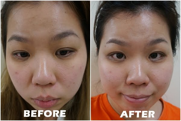 Image result for cosrx oil free ultra moisturizing lotion, before after