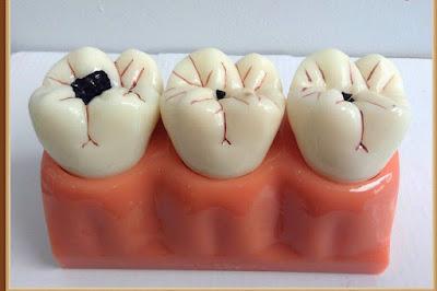 Làm răng sứ có cần lấy tủy không?