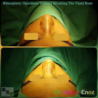 Nasal aesthetic surgery without breaking the nasal bone,Rhinoplasty without breaking bone,Nose job without breaking bone,Rhinoplasty in İstanbul Turkey,