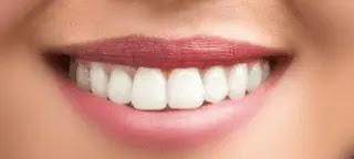 فوائد المر للاسنان. المر للقضاء علي التسوس . والتخلص من البكتريا ورائحة الفم الكريهة. وصفه قويه لألم الاسنان.