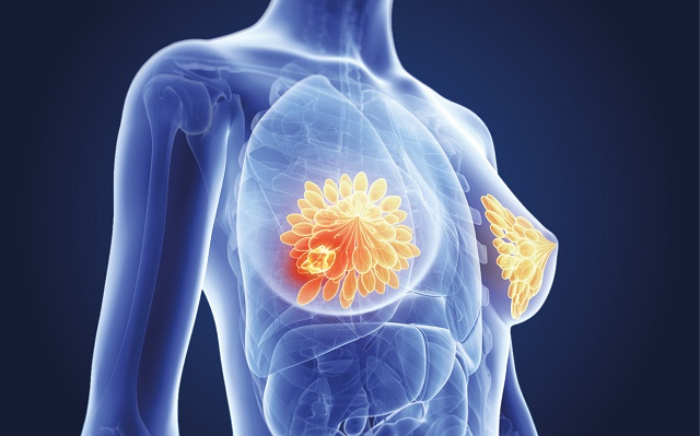 How to cure breast cancer without surgery