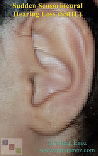 Sudden Sensorineural Hearing Loss (SSHL)