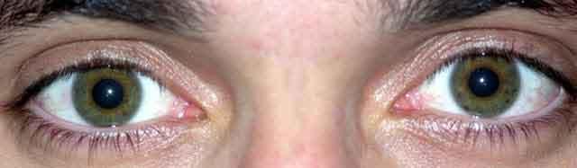 حقائق غريبة حول العين البشرية