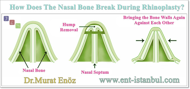 Shaping of Nasal Bones During Nose Aesthetic Surgery
