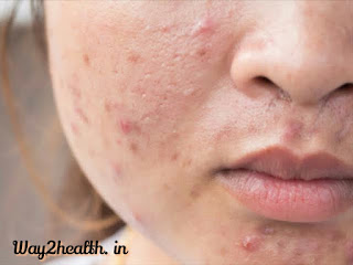 Acne Cure Tips