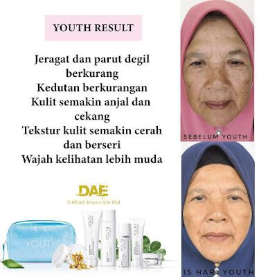 Jeragat pudar - testimoni youth skincare