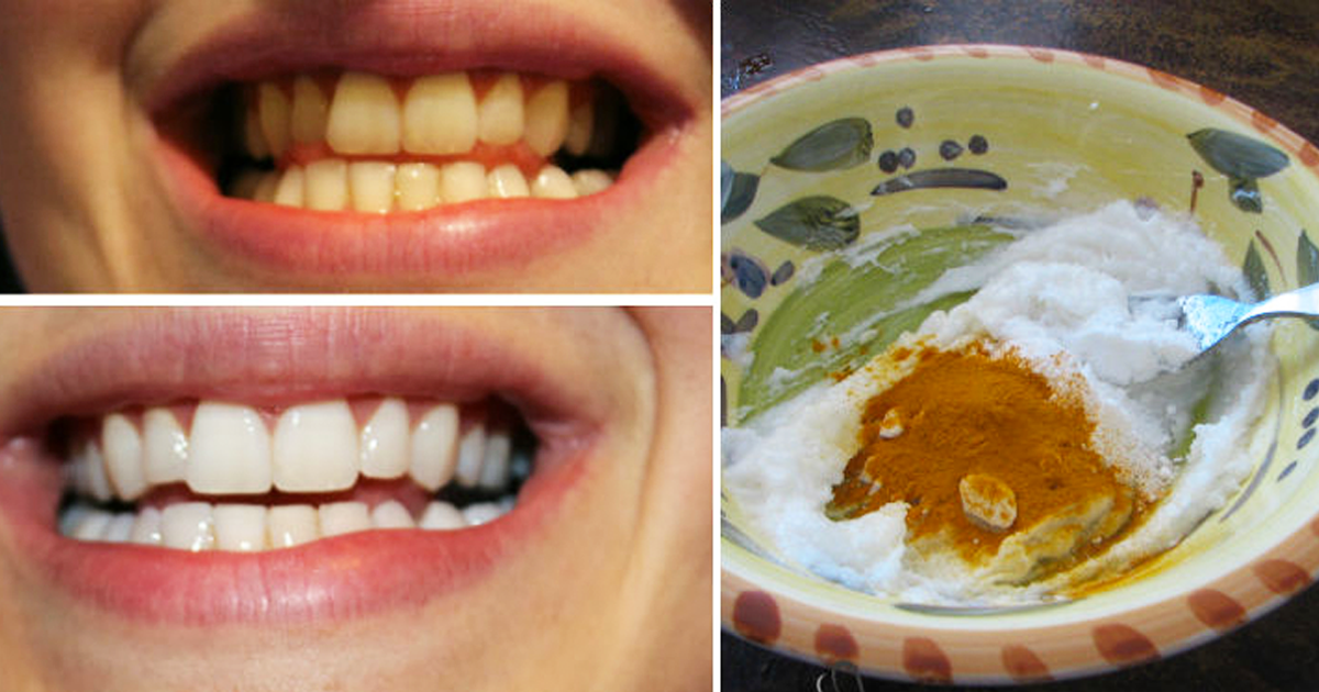 He Makes A Paste Using This Common Ingredient To Whiten His Teeth