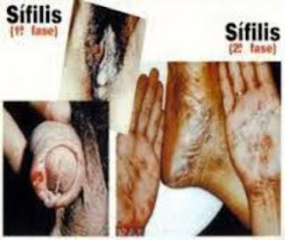 obat virus sipilis paling ampuh di apotik