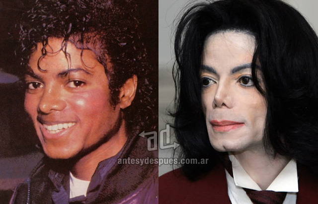 Dirty Hollywood Celebrities Before And After Plastic Surgery