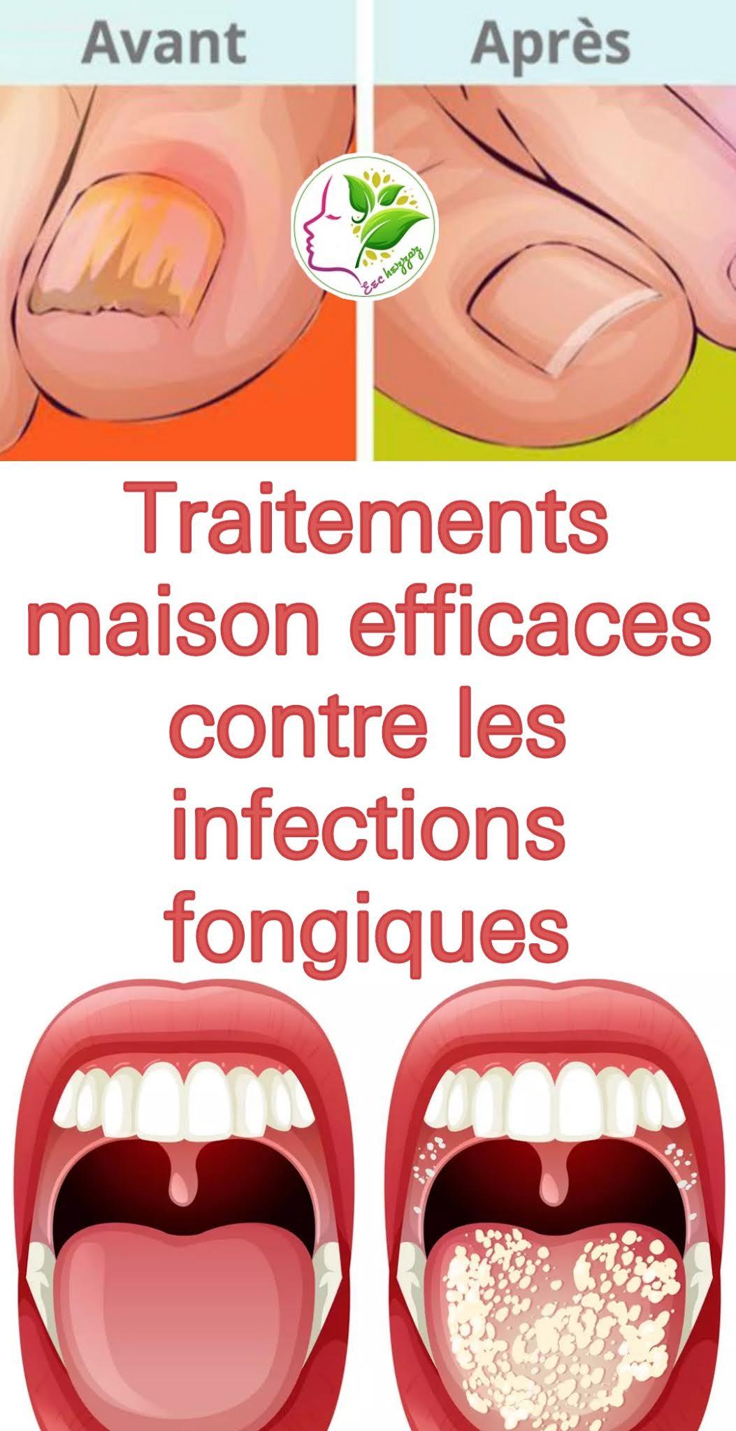 Traitements maison efficaces contre les infections fongiques