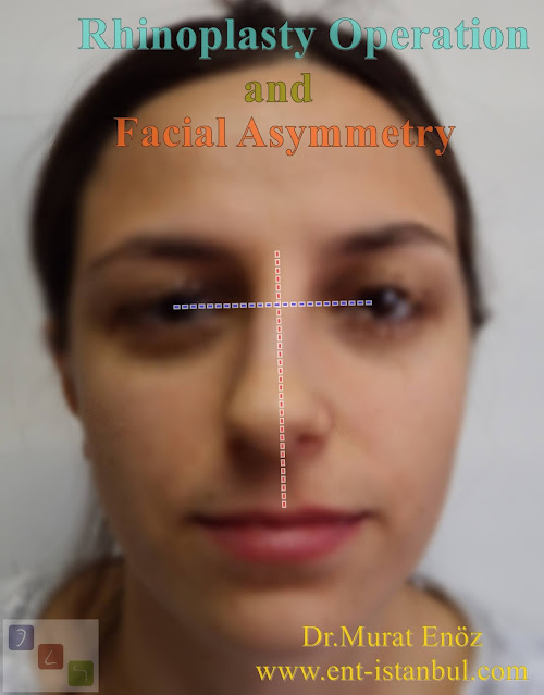 facial asymmetry, deviated nose, rhinoplasty, nose aesthetic, crooked nose, traumatic facial bone asymmetry