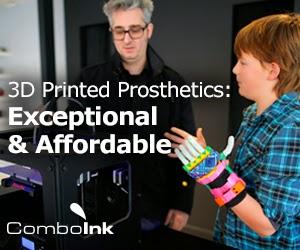 3d printed prosthetics