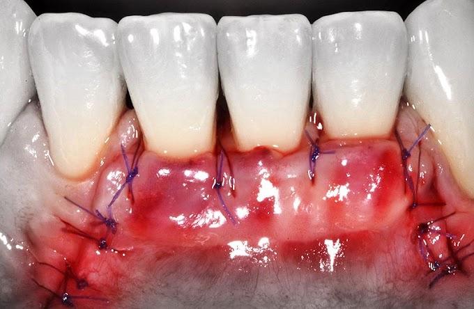 PDF: Cirurgias odontológicas em usuários de anticoagulantes orais