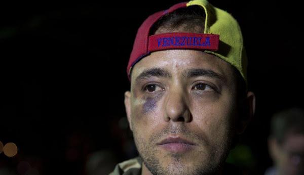Jesús Medina acusa a director del SEBIN de ordenar su secuestro
