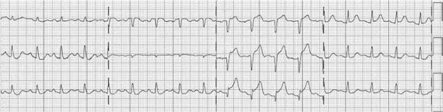 Case ECG