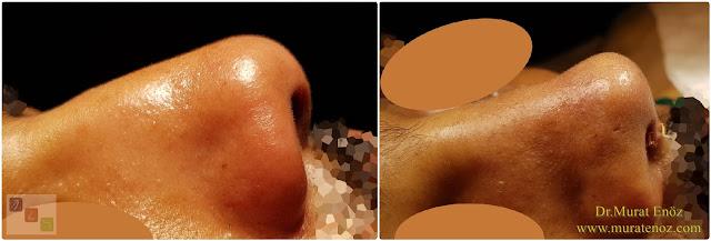 Deri altı dokusu ile burun kökü dolgusu - Burun ucu estetiği - Burun kemeri törpüsü - Kemik kırılmadan burun estetiği - Erkek burun ucu estetiği - Burun ucu kaldırma - Burun ucu daraltma