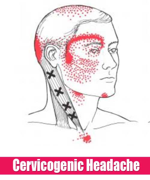 Cervicogenic Headache: Symptoms, Causes and Treatments